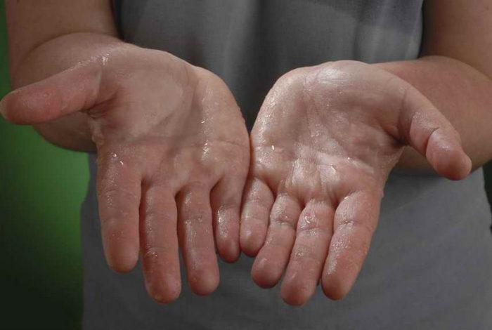 5 причин, чому ваші руки часто потіють