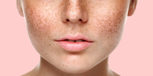 Як прибрати пігментацію в домашніх умовах або в салоні краси: 7 реальних способів