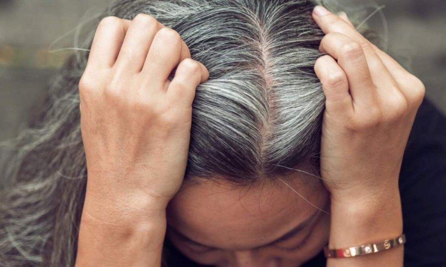 2 сильні емоції, які призводять до втрати волосся і сивини