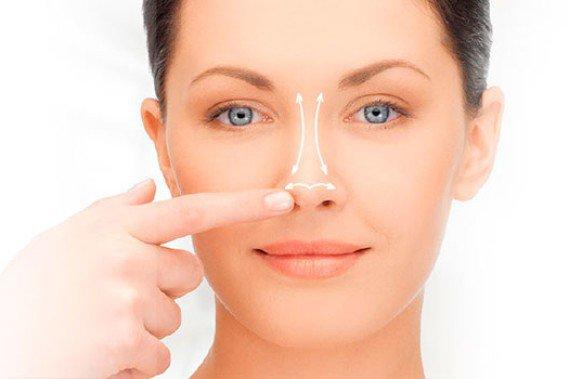 Як роблять ринопластику носа: види і догляд після операції