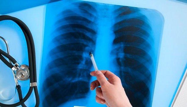 Не просто кашель: 8 міфів про туберкульоз, які давно пора розвіяти