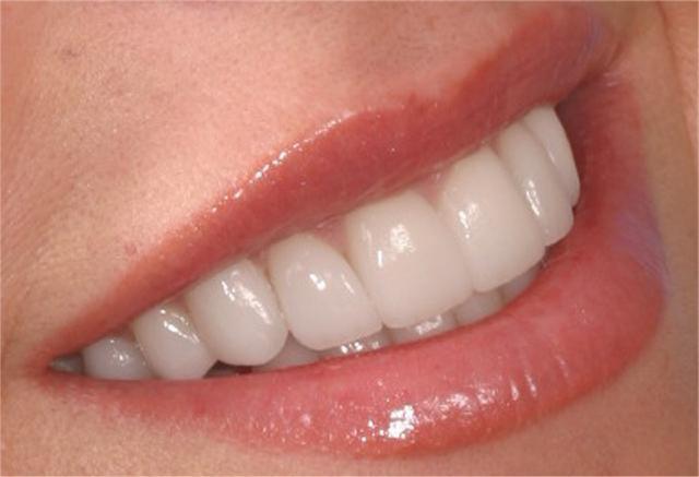 Коронка або пломба: що точно захищає зуби, а що - зайва трата грошей